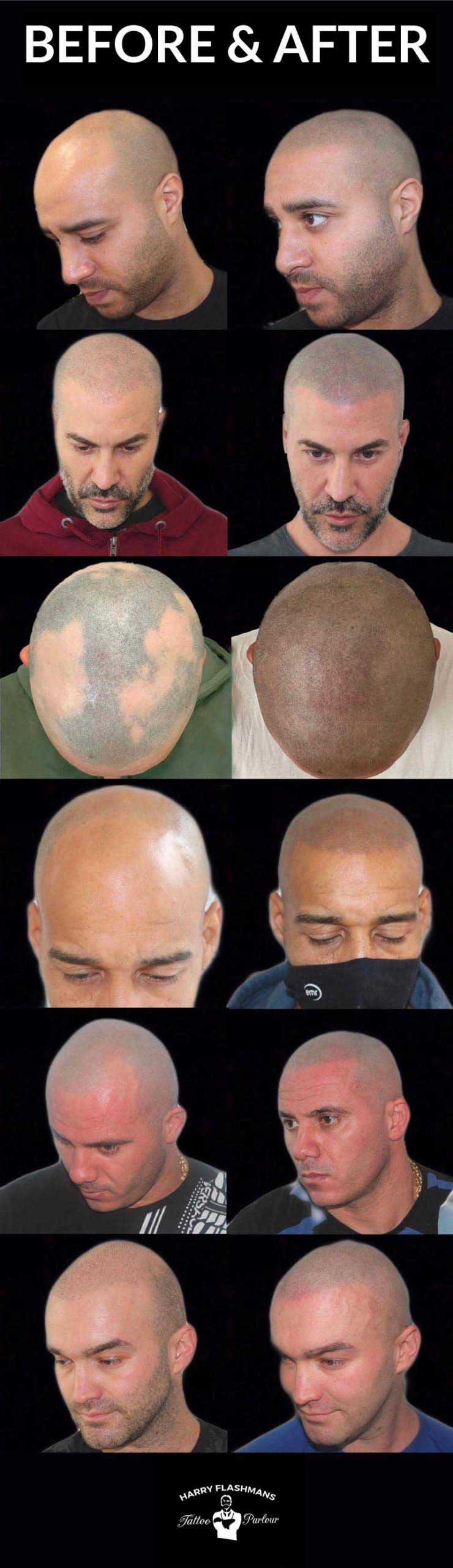 scalp-micropigmentation-smp-before-after
